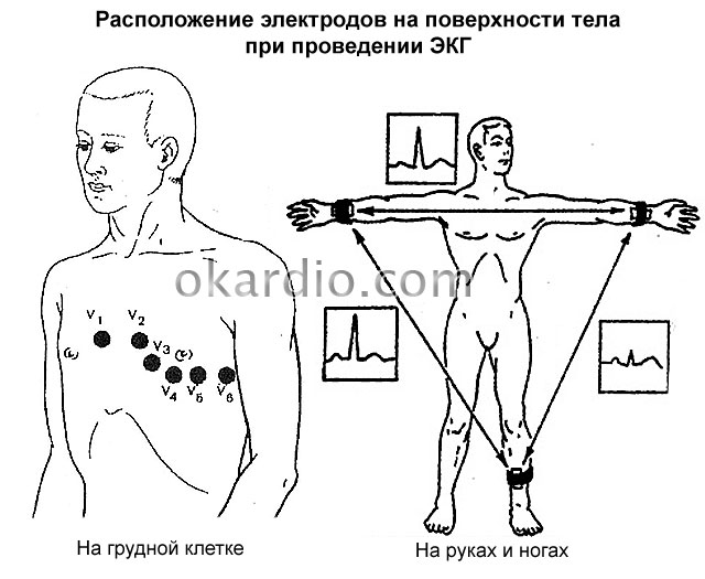 расположение электродов на поверхности тела при проведении ЭКГ