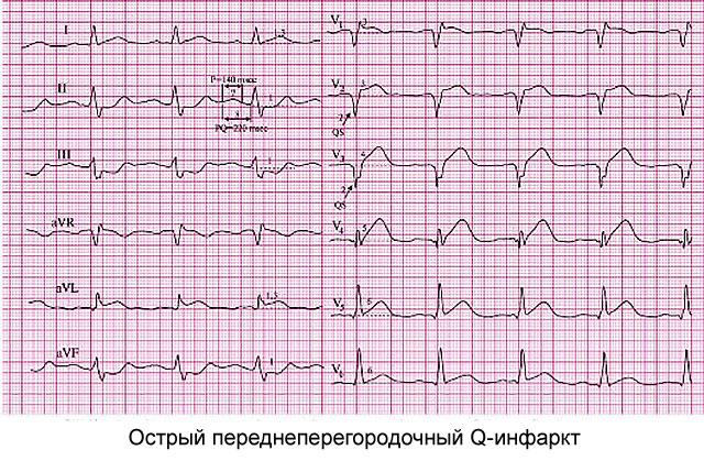 острый переднеперегородочный Q-инфаркт
