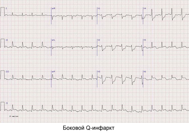 боковой Q-инфаркт