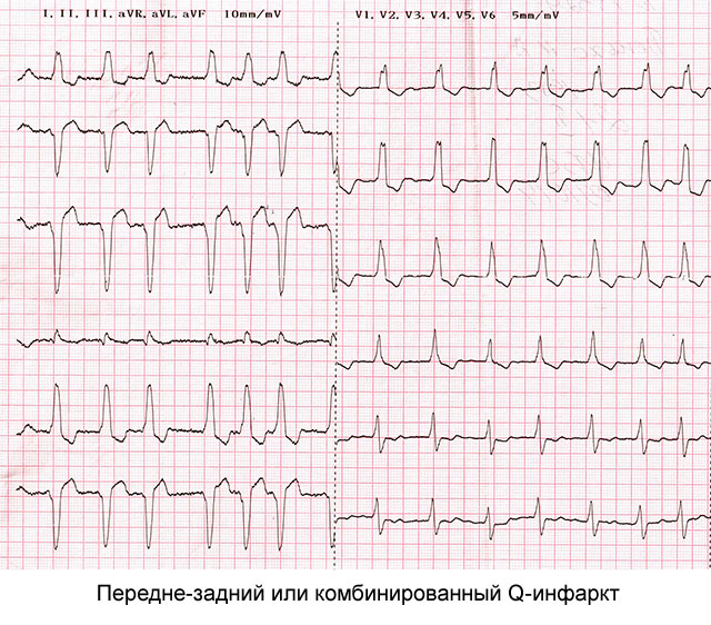 передне-задний Q-инфаркт