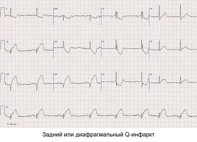 задний Q-инфаркт
