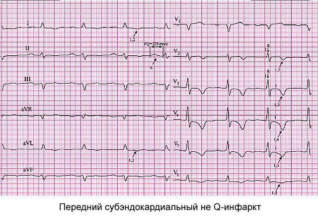 передний субэндокардиальный не Q-инфаркт