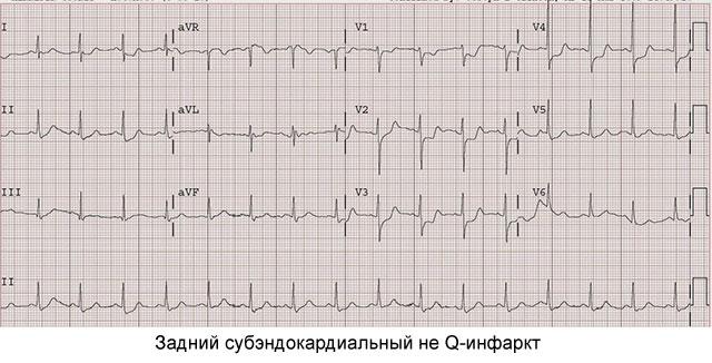 задний субэндокардиальный не Q-инфаркт
