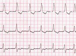 график ЭКГ при одном из видов инфаркта