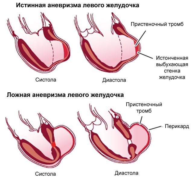 аневризма стенки желудочка