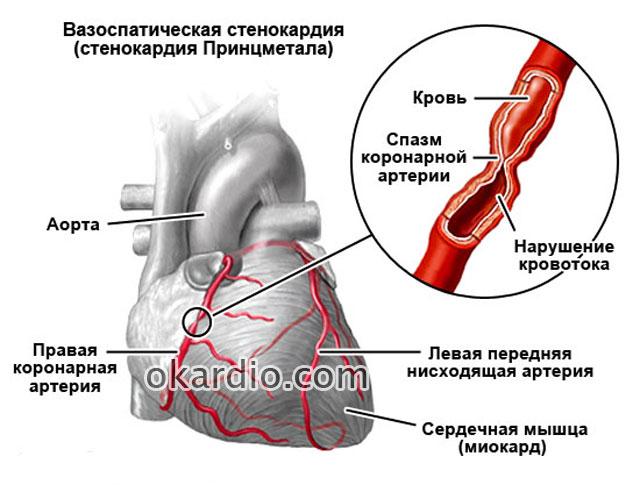 Основные симптомы и лечение стенокардии вазоспастической