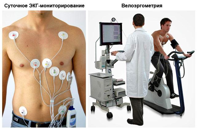 суточное ЭКГ-мониторирование и велоэргометрия