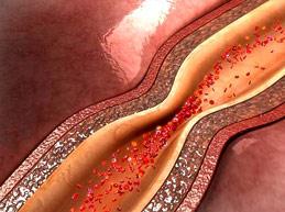 спазм сосуда, вазоспастическая стенокардия