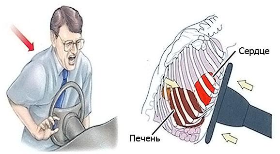 тупая травма грудной клетки