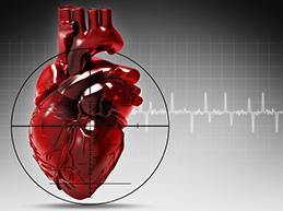 Обзор всех причин инфаркта, факторы риска
