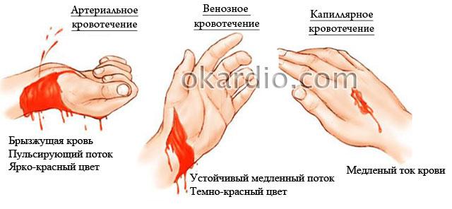 внешний вид разных видов кровотечений