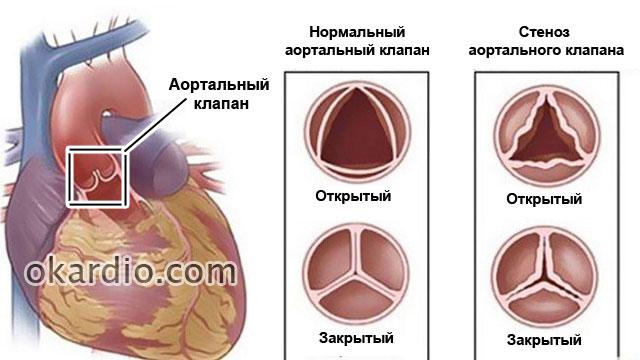стеноз клапана