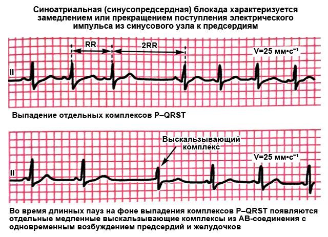 синоатриальная блокада на ЭКГ