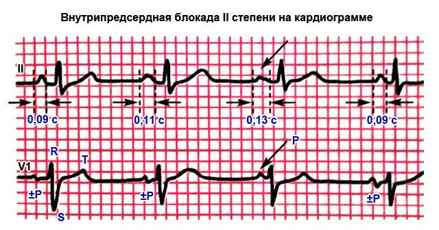 внутрипредсердная блокада II степени на кардиограмме