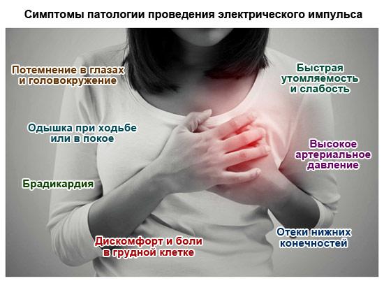 симптомы патологии проведения электрического импульса