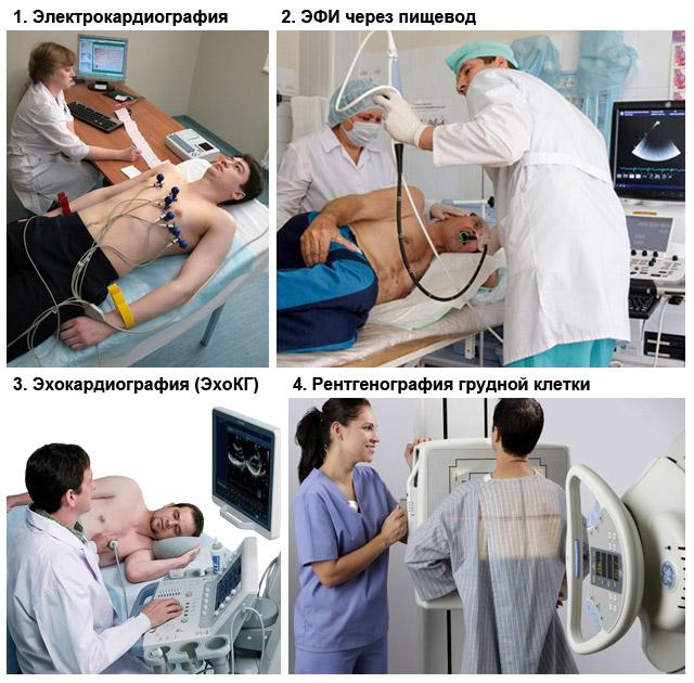 методы диагностики замедления внутрипредсердной проводимости