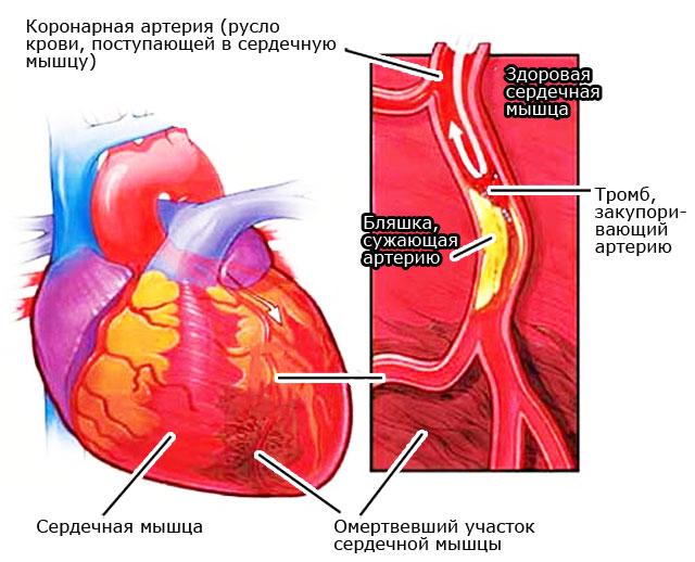 некроз при трансмуральном инфаркте