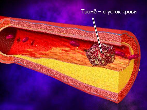 тромб – сгусток крови, перекрывающий просвет сосуда