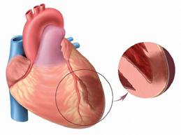 Полная характеристика трансмурального инфаркта