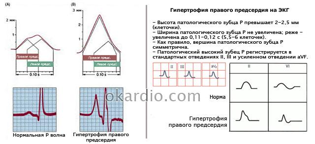 гипертрофия правого предсердия на ЭКГ