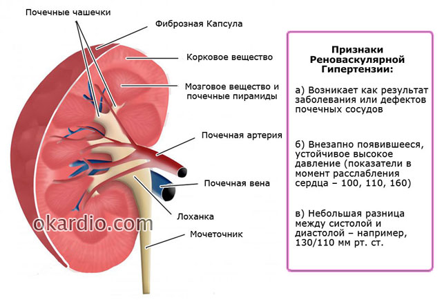 анатомия почки и признаки реноваскулярной гипертензии