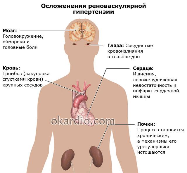 осложнения реноваскулярной гипертензии