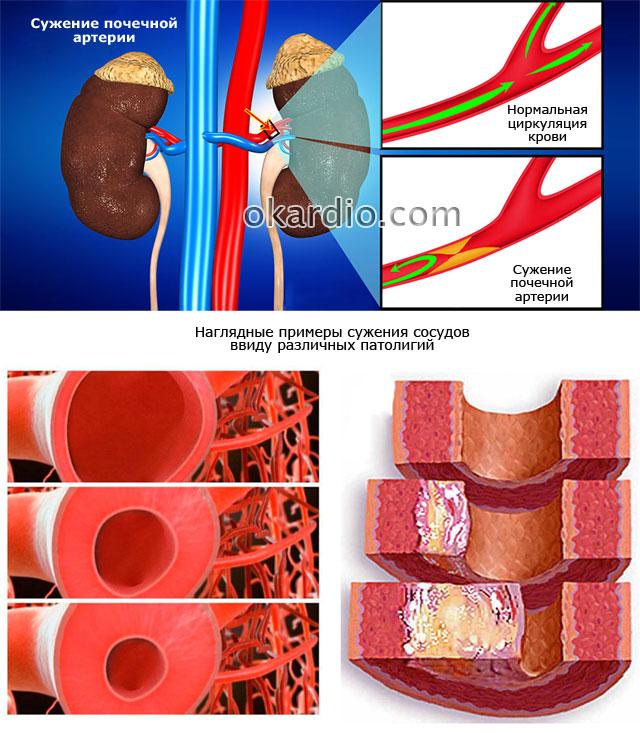 сужение почечной артерии и сосудов