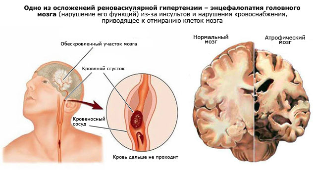 одно из осложнений реноваскулярной гипертензии – энцефалопатия головного мозга