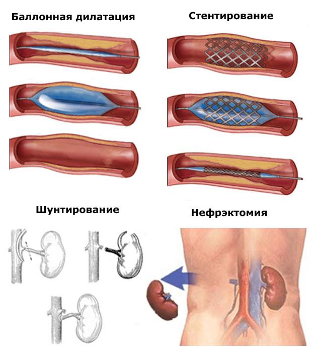 хирургический методы лечения реноваскулярной гипертензии