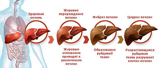 стадии повреждения печени