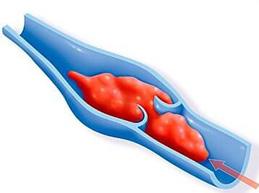 Пять действенных методов профилактики тромбов в сосудах