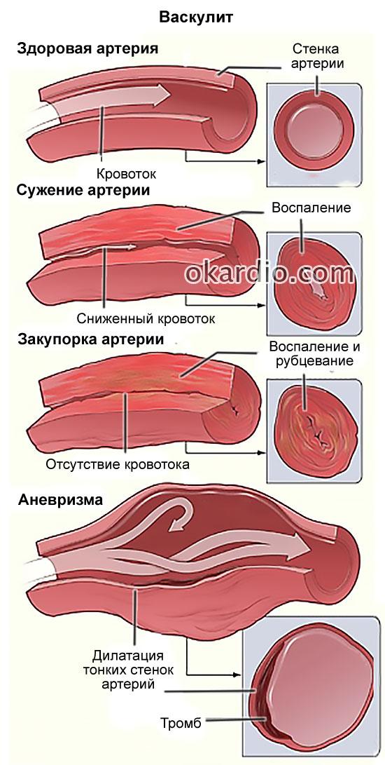 васкулит