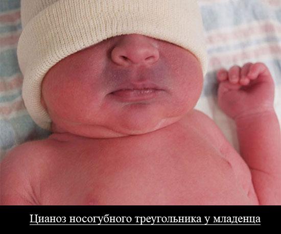 цианоз носогубного треугольника у младенца